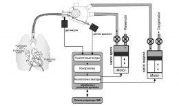 Схема устройства аппарата ИВЛ